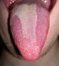 Geographic tongue is a condition affecting the tongue.